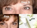 LimeLight Eye Aspire Eye Serum-5 Days